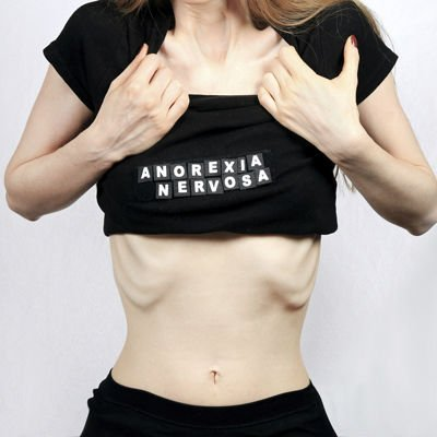 Anorexia - Foto: Getty Images