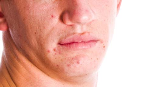 Acne - Getty Images