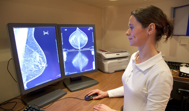 Médica analisando exame de mamografia - Foto Getty Images