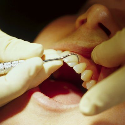 Dentista - Foto: Getty Images