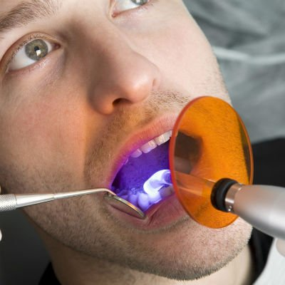 Clareamento dental ativado por luz - Foto: Getty Images