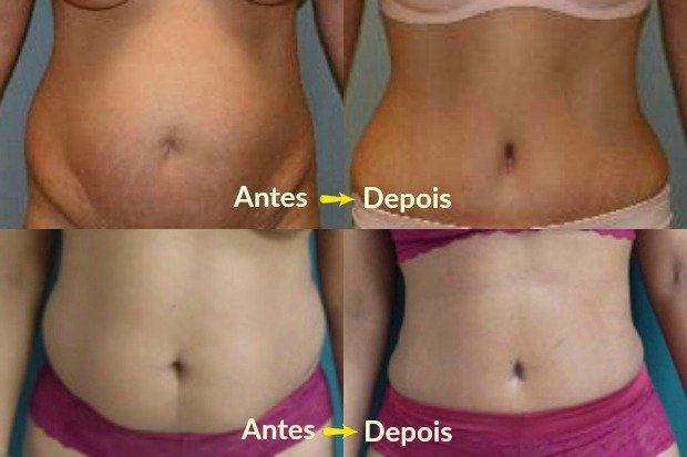 Antes e depois da abdominoplastia - Fotos: American Society of Plastic Surgeons / Meegan Grunber e M; Vicent Makhlouf