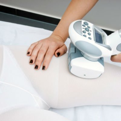 Endermologia - foto: Getty Images