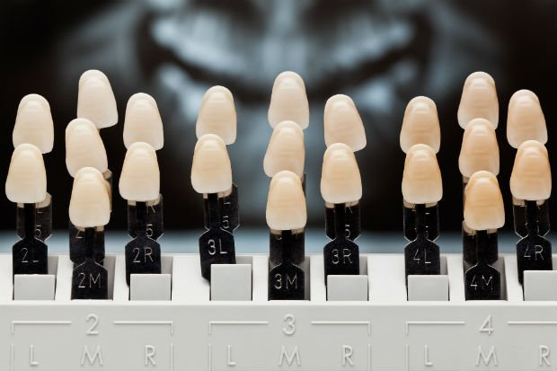 Dentes com diferentes matizes de base - Foto: Getty Images