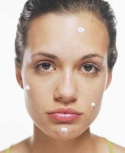 Acne - foto: Getty Images