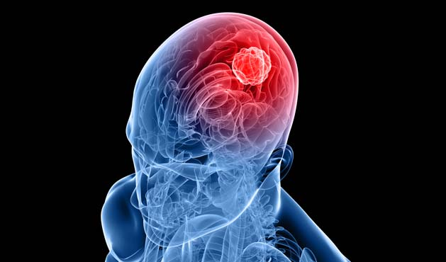 Tumor na cabeça - Foto: Getty Images
